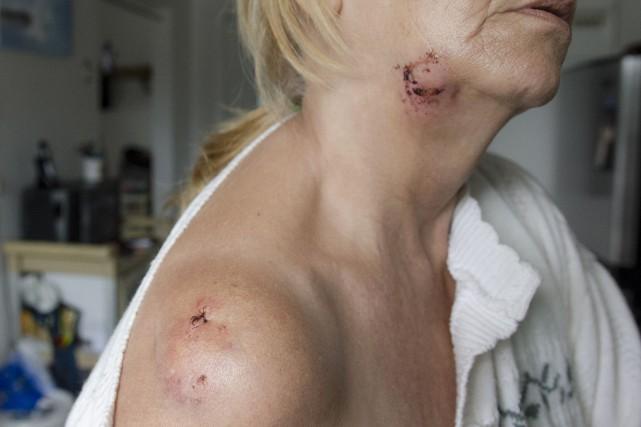 Une femme a été attaquée par le pitbull... (Spectre Média, Stéphanie Vallières)