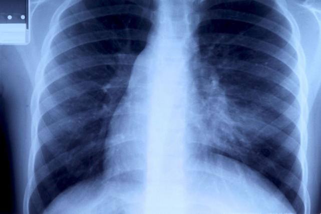 La légionellose est une infection pulmonaire qui s'attrape... (123RF)