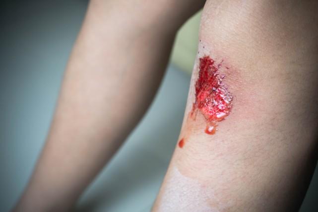 Si on se coupe ou on se brûle la journée, les plaies guérissent beaucoup plus... (Photo Thinkstock)