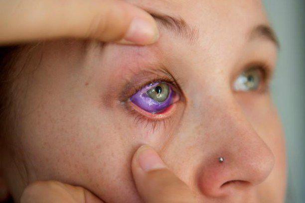 Le tatouage du globe oculaire consiste à injecter... (Photo Justin Tang, La Presse Canadienne)