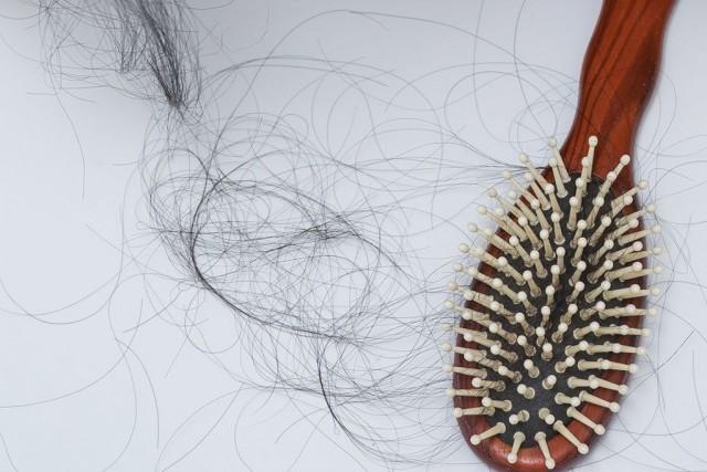 Les raisons de la perte de cheveux sont... (PHOTO GETTY IMAGES)