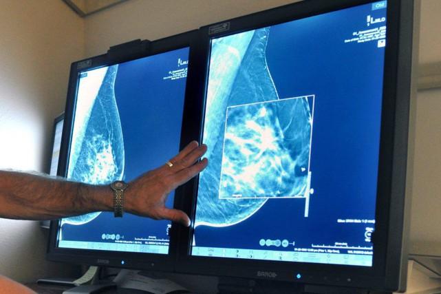 Le cancer du sein pourrait un jour être plus facile à diagnostiquer et même à... (Photo Torin Halsey, archives ASSOCIATED PRESS)