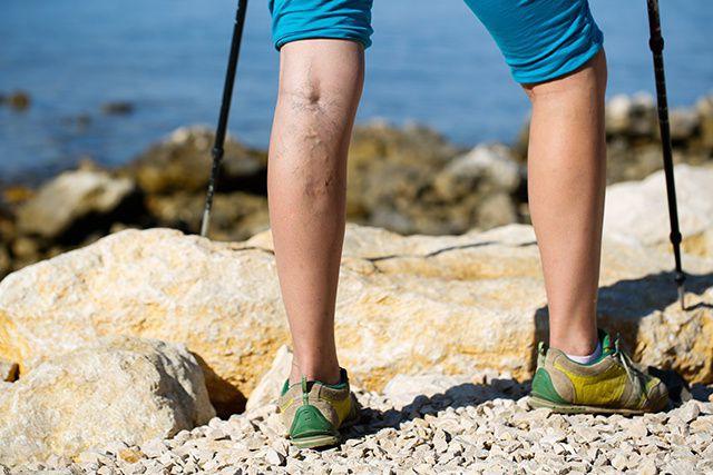 Jambes lourdes et douloureuses? Vous souffrez peut-être de la maladie veineuse...