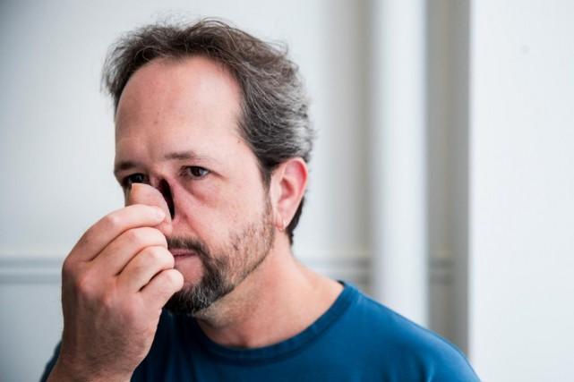 MathieuKirouac nous montre son nouveau nez, conçu par... (PHOTO MARCOCAMPANOZZI, LA PRESSE)