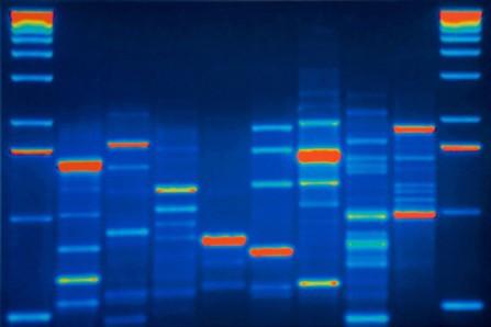 Tests de prédisposition à différentes maladies, tests de... (Photo: archives AP)