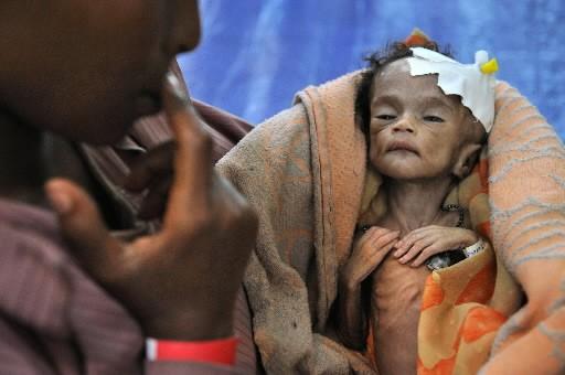 Un enfant souffrant de malnutrition.... (Photo: AFP)
