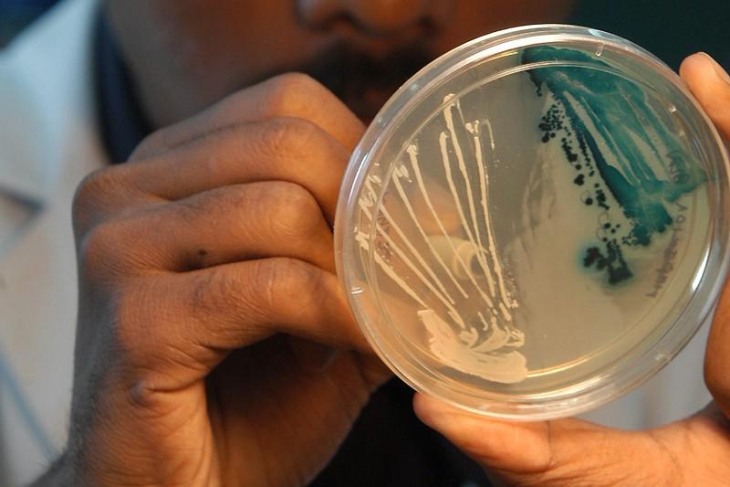 Un chercheur examine une bactérie E. coli.... (Photo: archives AP)