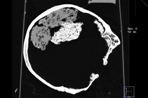 Scanner du crâne retrouvé près de la ville... (Photo: AFP)