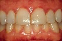 Un acide émis dans la bouche à cause d'une maladie des gencives stimule la...