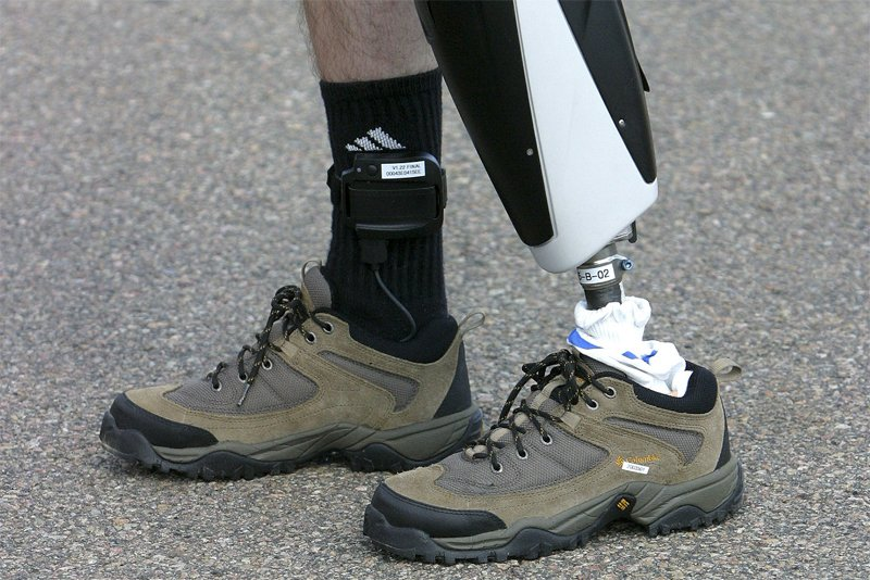 Une prothèse fabriquée par Victhom... (Photo Le Soleil)