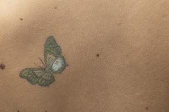 Les trois quarts des tatouages peuvent être... (Photo: Photothèque La Presse)