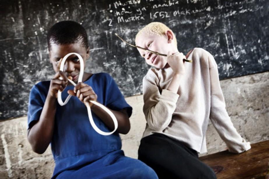 Les albinos souffrent d'une maladie génétique caractérisée par... (Photo: AP)