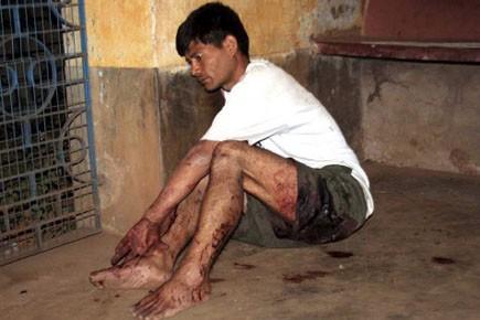 Un policier blessé lors des affrontements avec les... (Photo: AP)