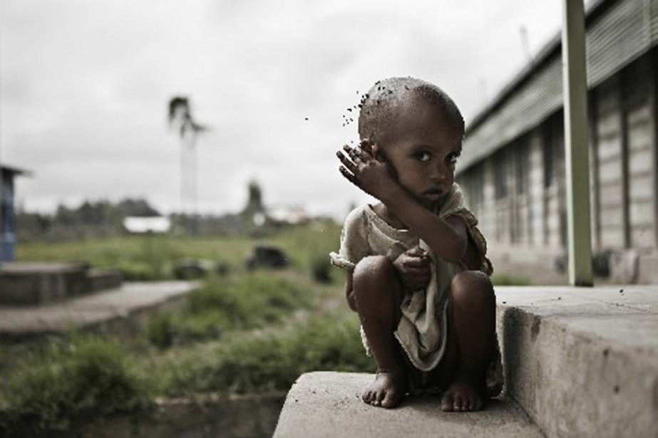 La malnutrition fait encore des ravages en Éthiopie,... (Photo: archives AFP)