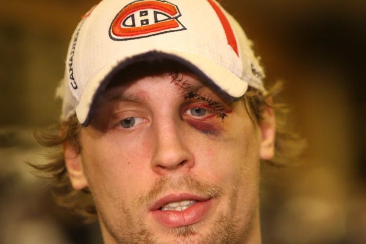 Travis Moen arbore une cicatrice d'une dizaine de... (Photo: Martin Chamberland, La Presse)