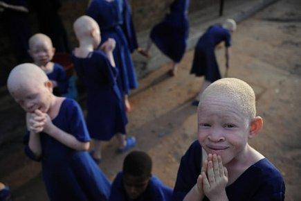 L'UNICEF s'inquiète particulièrement du sort des enfants albinos,... (Photo archives AFP)