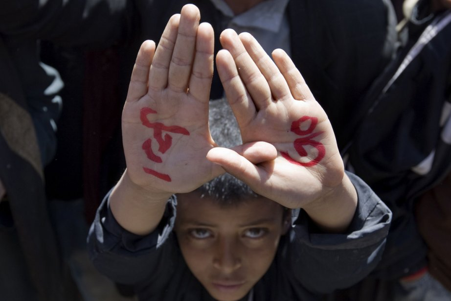 Un gamin montre ses mains sur lesquelles il... (Photo: AFP)