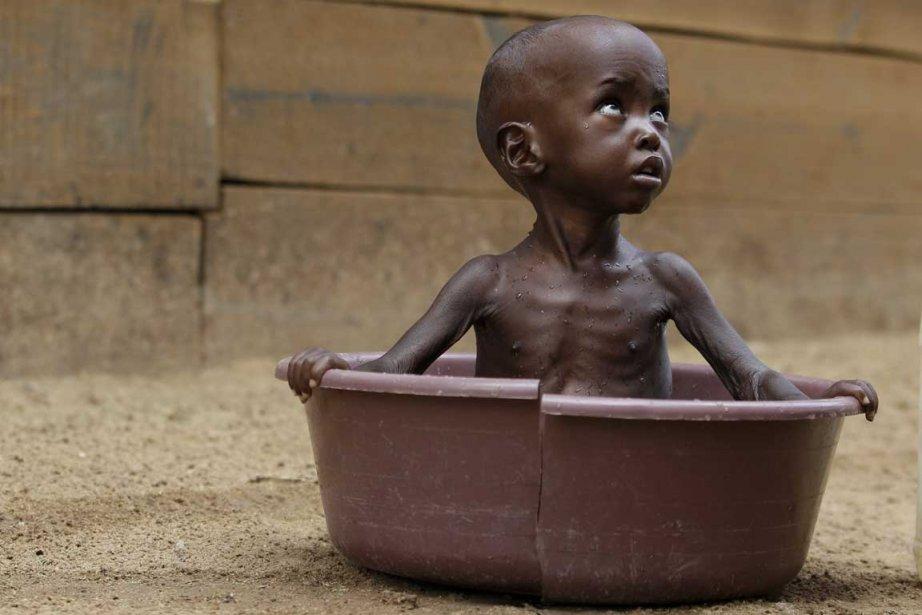 Les taux de malnutrition atteignent des niveaux alarmants... (Photo AP)