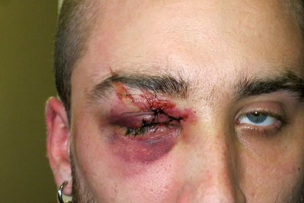 Francis Grenier a perdu un oeil après avoir... (Photo fournie par la famille)