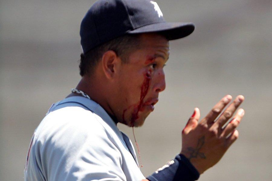 Miguel Cabrera a été atteint près de l'oeil... (Photo: AP)