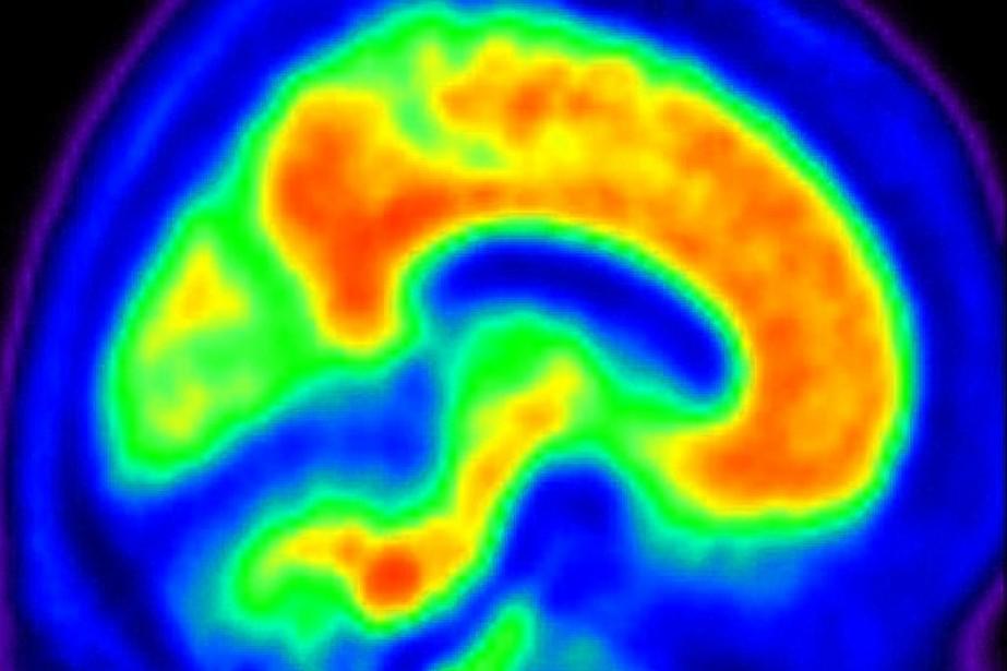 Image d'un cerveau atteint d'Alzheimer.... (Photo AP)