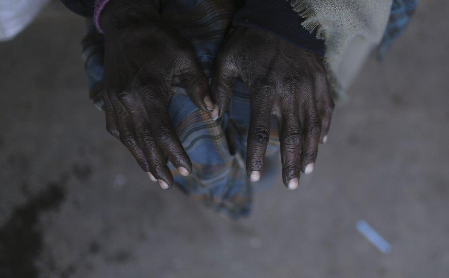 Un homme se réchauffe devant un feu à Delhi, en Inde. Les froides températures dans le nord de l'Inde ont tué plus d'une centaine de sans-abri. | 7 janvier 2013