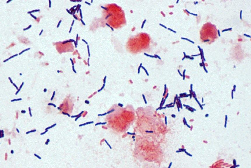 Quand un patient subit un traitement antibiotique, la... (Wikipedia)