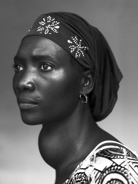 Le photographe belge Stephan Vanfleteren remporte le premier prix dans la catégorie «portrait mis en scène» pour sa photo de Makone Soumaoro, une femme de 30 ans vivant avec un goitre, soit un gonflement du cou dû à l'augmentation diffuse de volume du corps thyroïde. | 15 février 2013