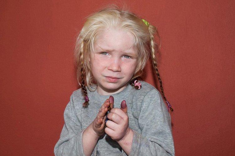 Les cheveux et la peau très clairs, les... (Photo: Reuters)