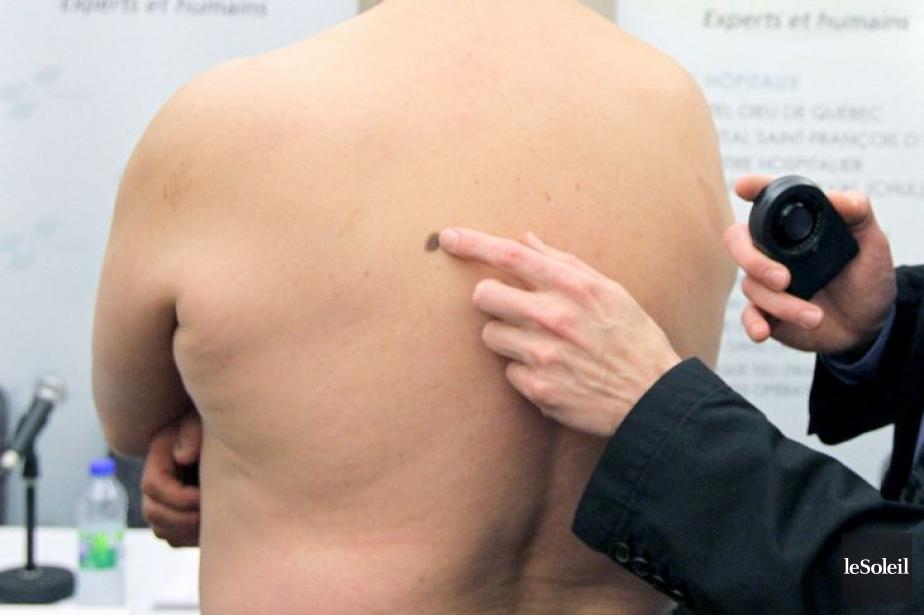 La FDA explique avoir approuvé Keytruda, car les... (Photo Jocelyn Bernier, Le Soleil)