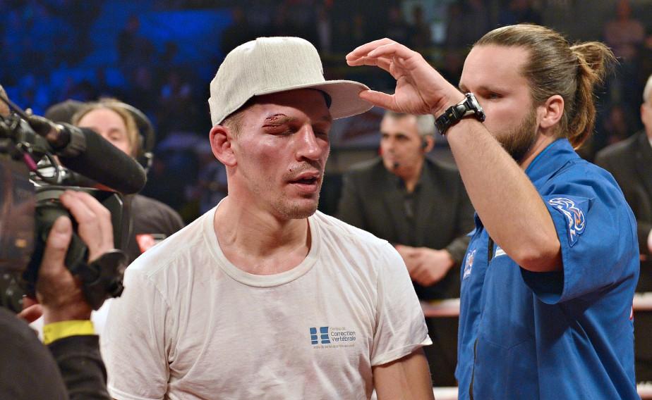 Bizier est ressorti visiblement amoché de son combat, montrant deux coupures au-dessus de l'oeil droit.Le boxeur de Saint-Émile s'est incliné par décision partagée aux pointages de 115-112, 113-114 et 114-113. (Le Soleil, Yan Doublet)