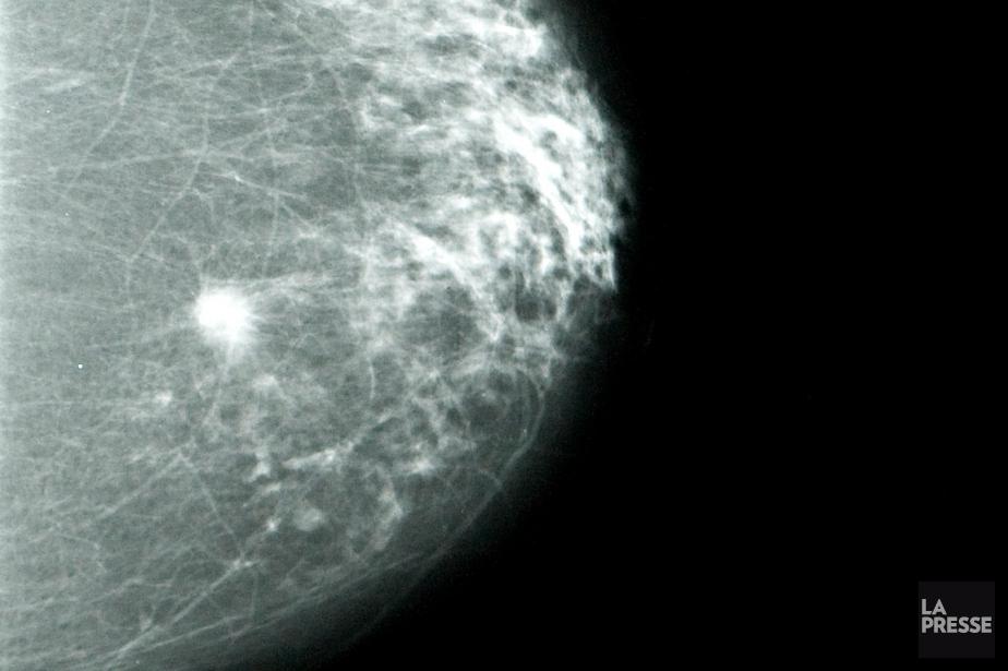On peut distinguer une masse sur cette mammographie.... (PHOTO FRANÇOIS ROY, ARCHIVES LA PRESSE)