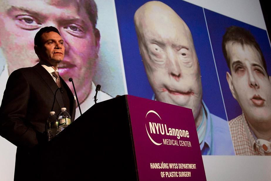 Le professeur Eduardo Rodriguez, qui a dirigé l'opération... (Photo Bebeto Matthews, AP)