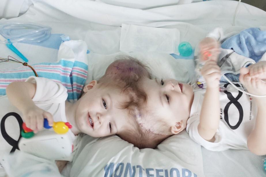 Les Bébés Filles Jumeaux : Des jumeaux siamois reliés par la tête séparés États unis
