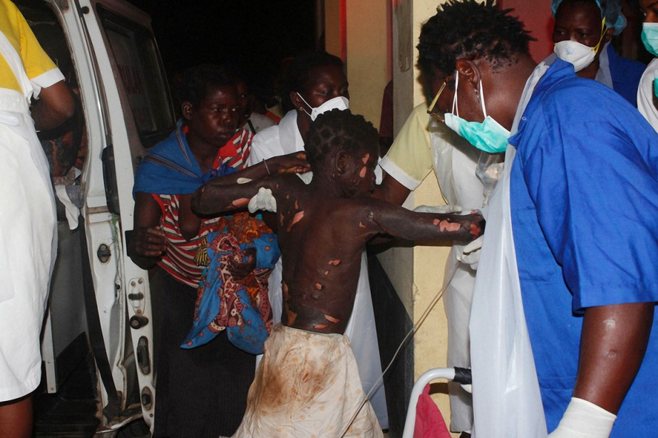 Un enfant grièvement brûlé lors de l'explosion arrive... (photo AMOS ZACARIAS, AFP)