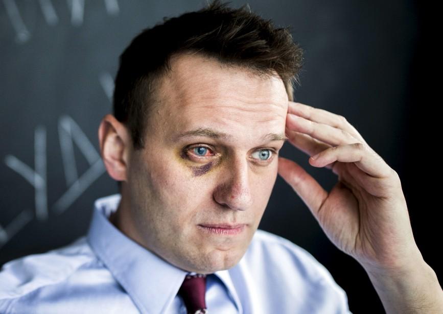 Le leader de l'opposition russe Alexei Navalny, assis dans son bureau à Moscou, raconte qu'il a eu recours à une chirurgie à un oeil après avoir été attaqué le mois dernier, alors qu'un assaillant lui a aspergé le visage d'antiseptique, causant une grave brûlure chimique. | 11 mai 2017