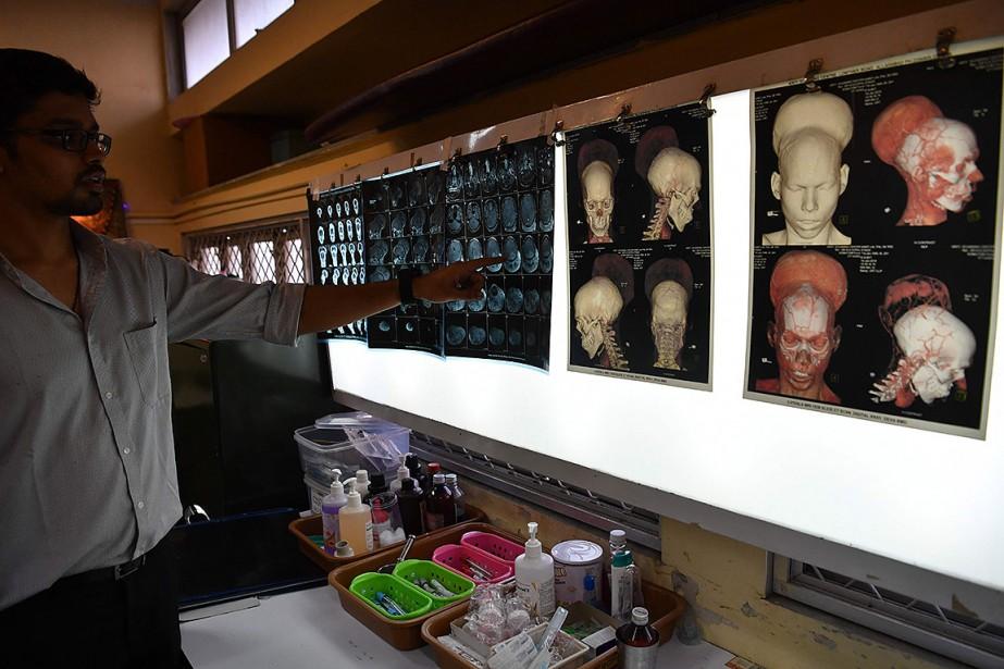Un médecin montre des images du cerveau et... (INDRANIL MUKHERJEE, AFP)