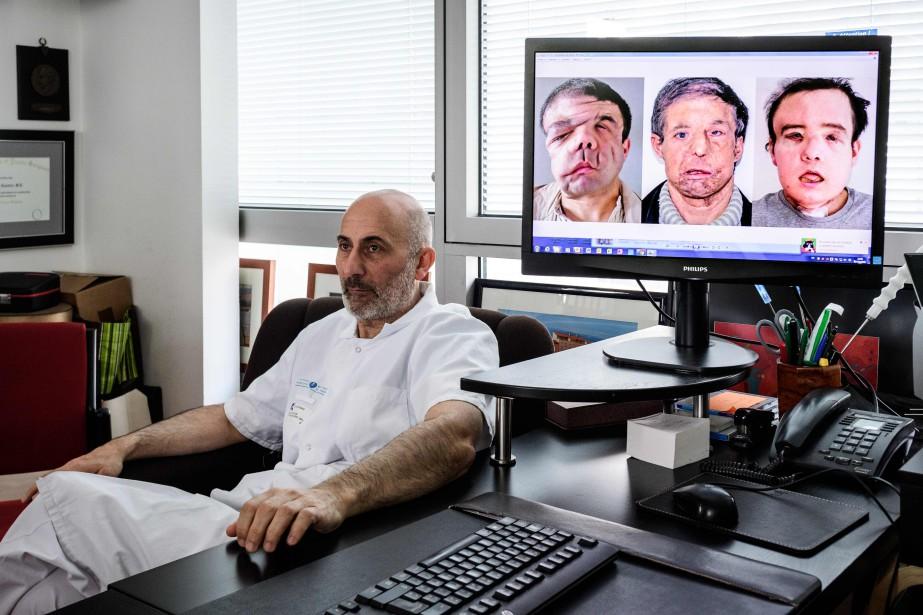 Le professeur Laurent Lantieri à côté d'un écran... (Photo PHILIPPE LOPEZ, Agence France-Presse)