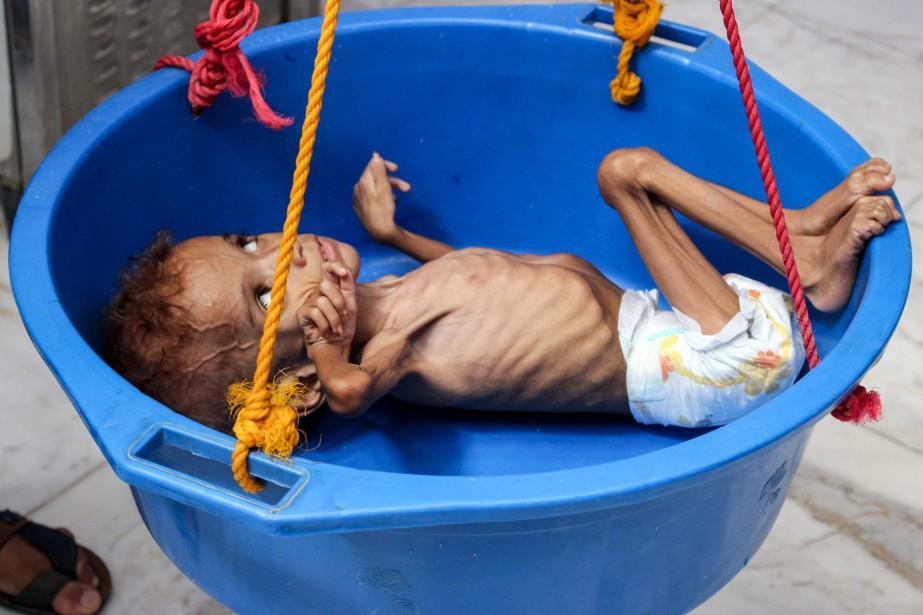 Dans un hôpital de la province de Hajjah,... (Photo Essa Ahmed, Agence France-Presse)