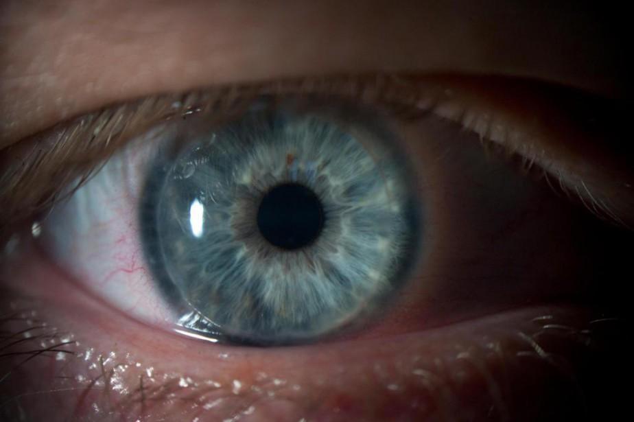 Le Centre universitaire d'ophtalmologie de l'hôpital Maisonneuve-Rosemont espère... (PHOTOANDREW TESTA, ARCHIVES THE NEW YORK TIMES)