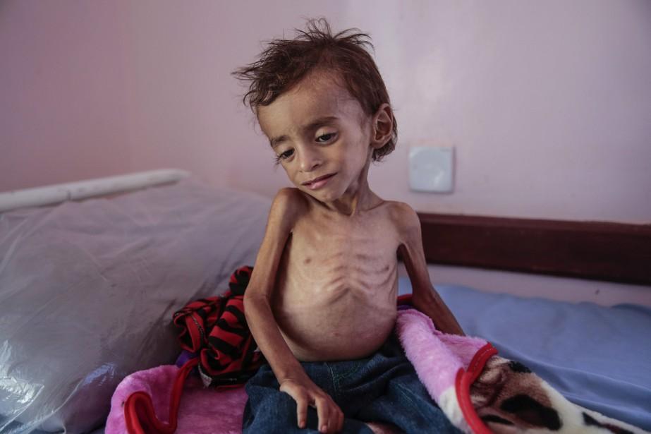 Les 20 millions de Yéménites confrontés à une... (Photo Hani Mohammed, archives AP)