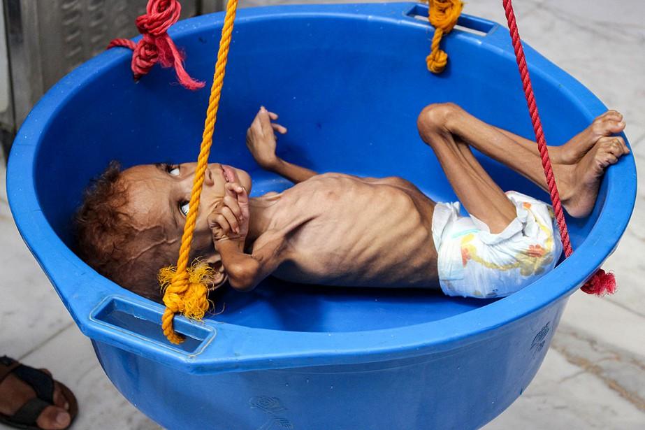 Le conflit au Yémen, pays pauvre de la... (Photo ESSA AHMED, archives AFP)