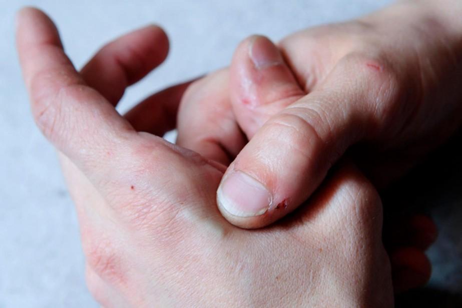 Sous leur peau, il n'y a pas que des os et... (PHOTO ALAIN ROBERGE, LA PRESSE) - image 3.0