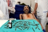 Doctors remove 40 knives from man's stomach in Amritsar.